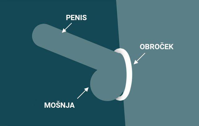 Kaj sploh so erekcijski obročki za penis?